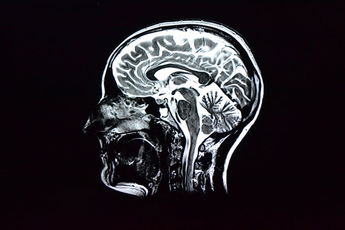 In the test patients take a radioactive chemical that binds to protein clumps called amyloid plaques in their brain, showing up the plaques on a brain scan. Amyloid plaques are one of the hallmarks of Alzheimer's disease. If a brain scan shows no plaques, Alzheimer's is ruled out and the patient could be in the clear for the disease for five years.The test can't definitively say that a person does have Alzheimer's, but combined with other tests would support a diagnosis.