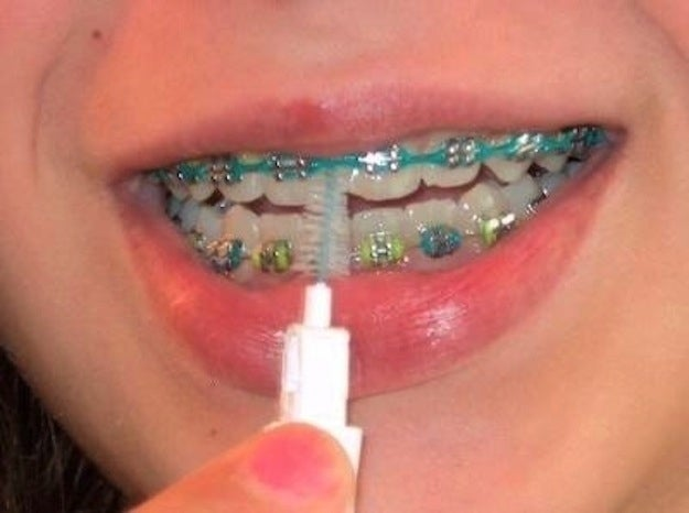Braces Without Wire | The 26 Stages Of Getting Braces