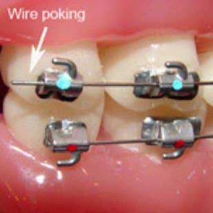 Bracket Came Off Tooth But Still On Wire | The 26 Stages Of Getting Braces