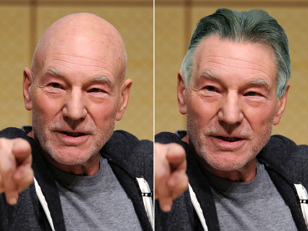 Surprising 12 Eye Opening Pictures Of Bald Celebrities With Hair Hairstyle Inspiration Daily Dogsangcom