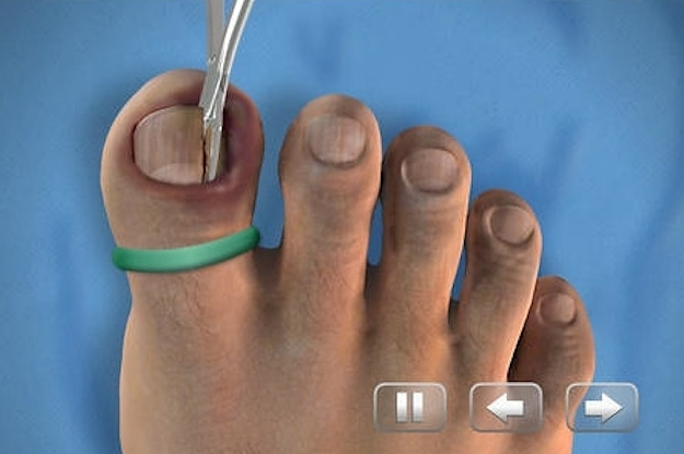 There Is A Toenail Removal Simulator On The App Store