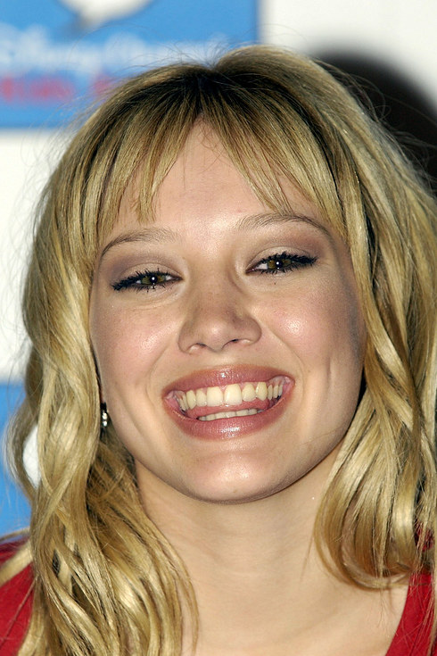 Hilary Duff Teeth Before And After