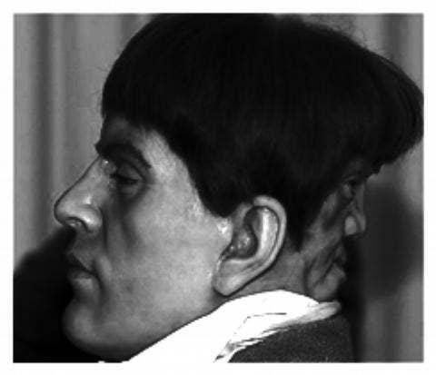 Edward Drake era un uomo del 19 ° secolo che soffriva di Diprosopus, o duplicazione cranica. Mentre c'è qualche disputa sulla veridicità della sua storia, secondo il libro del 1990 Anomalie e Curiosità della medicina si diceva che avrebbe avuto una seconda faccia sul retro della sua testa che poteva solo ridere e piangere. Ha affermato che la faccia gli parlava di notte, ed era così angosciato che si è suicidato all'età di 23 anni. Il terzo e il quarto episodio di Freak Show sono interpretati da un Edward Mordrake romanzato.
