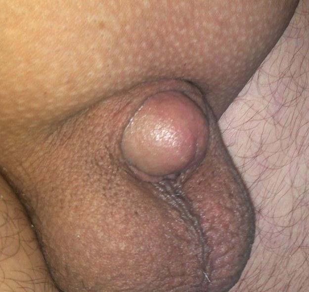 very tiny penis