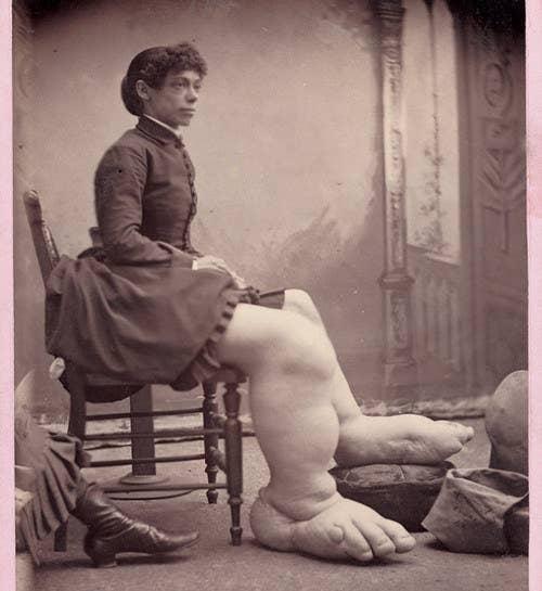 Fanny Mills nacque nel 1860 con una condizione nota come malattia di Milroy, che causa un gonfiore estremo degli arti inferiori. Durante la sua permanenza nel circo, una ricompensa di cinquemila dollari fu offerta a chiunque fosse disposto a sposare Fanny. Fanny era già felicemente sposata, tuttavia, e il suo stipendio da $ 150 a settimana le offriva uno stile di vita confortevole fino alla sua morte a un'età prematura di 32 anni.