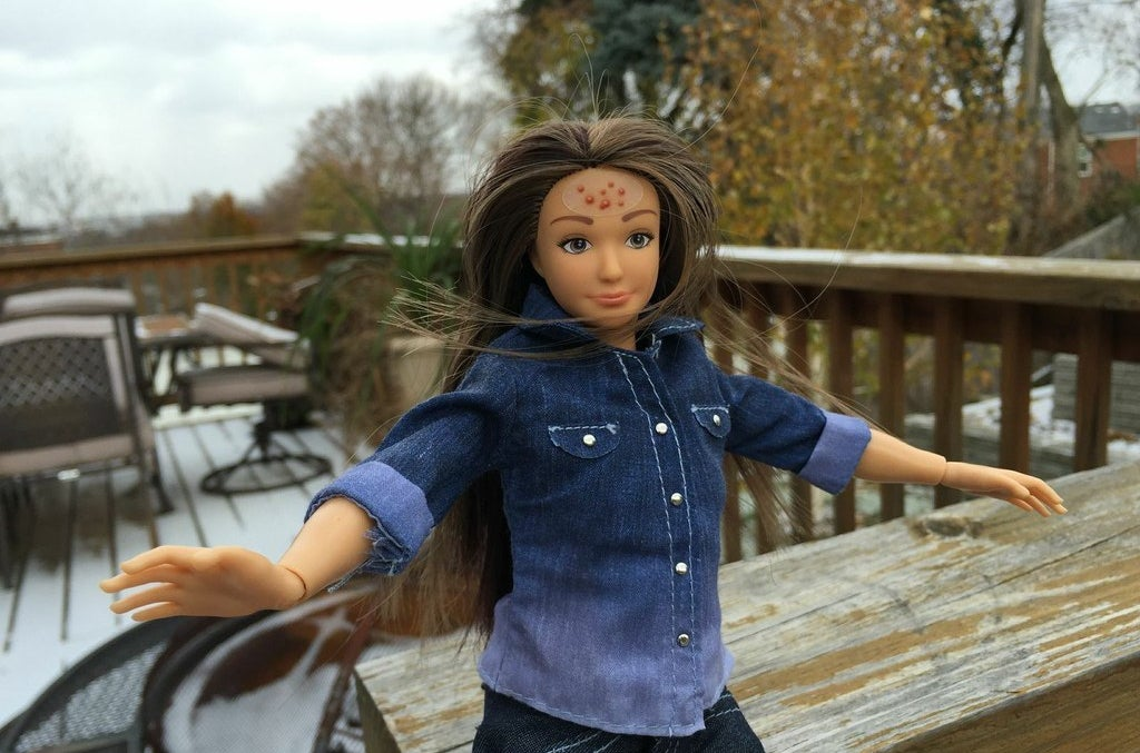 Una muñeca Lammily con una pegatina de acné