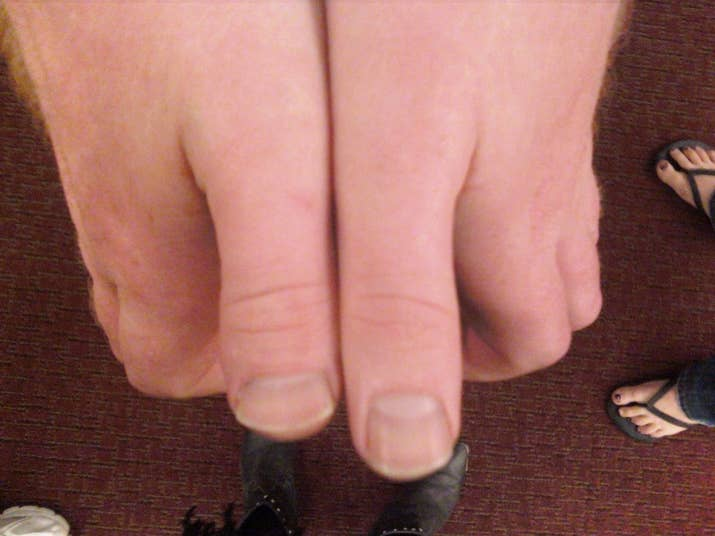 11 Problems Only People With Toe Thumbs Understand