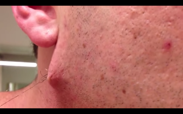 This Guy Has The Most Insane Ingrown Hair You Ve Ever Seen