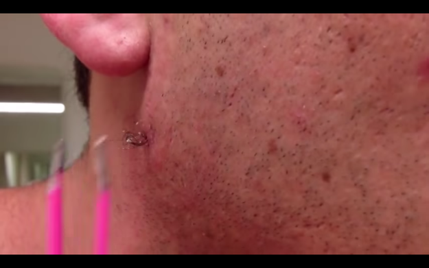 this guy has the most insane ingrown hair youve ever seen