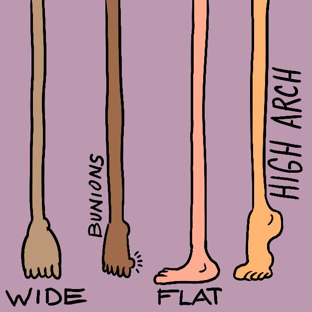 Not all wide-foot problems are the same!