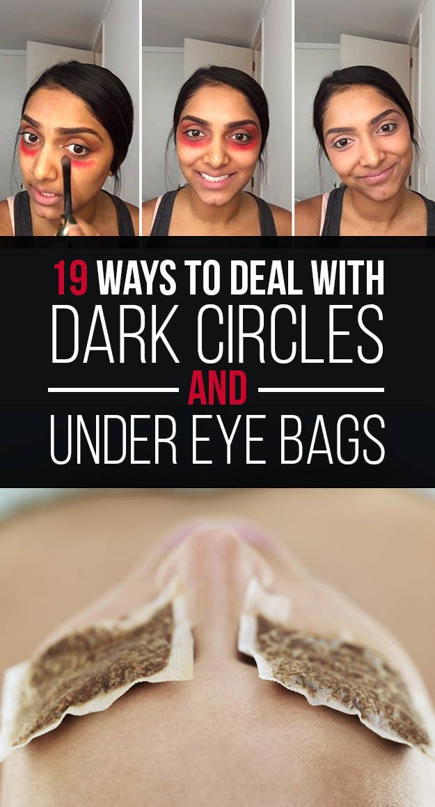 19 Ways To Deal With Dark Circles And Under Eye Bags