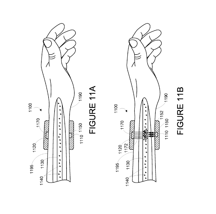 Google Filed A Patent For A Wearable To Zap Cancer