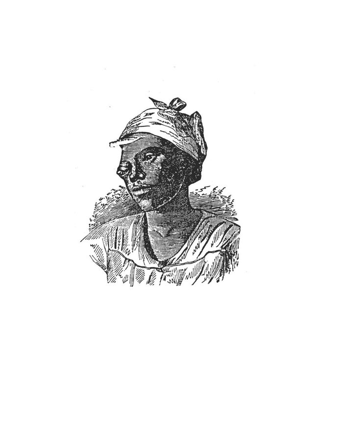 Lucinda, a slave subjected to experimental surgery for an eye tumor.