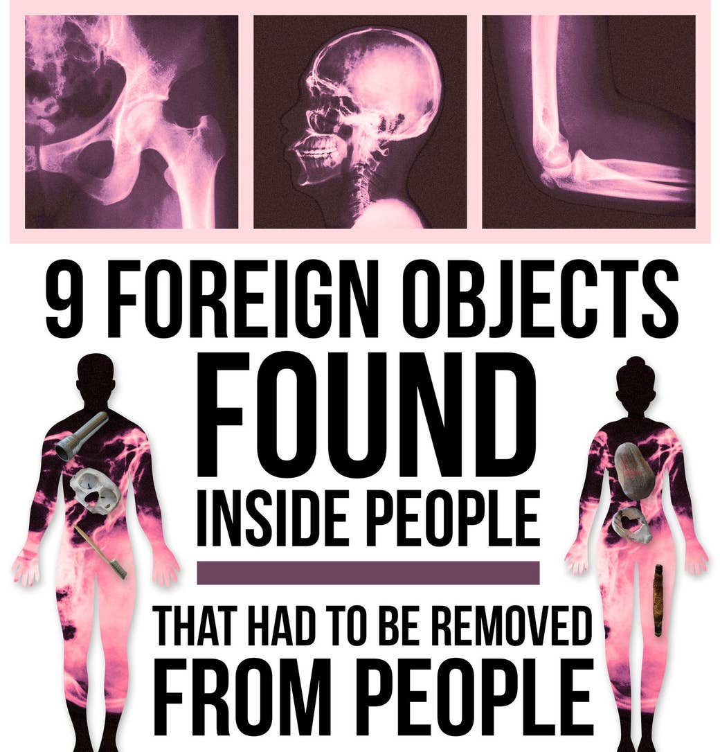 9 things people put inside their bodies that had to be removed from