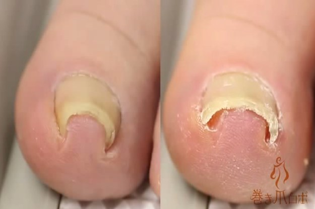 This Video Of Someone Fixing An Ingrown Toenail Is Grossly Mesmerizing