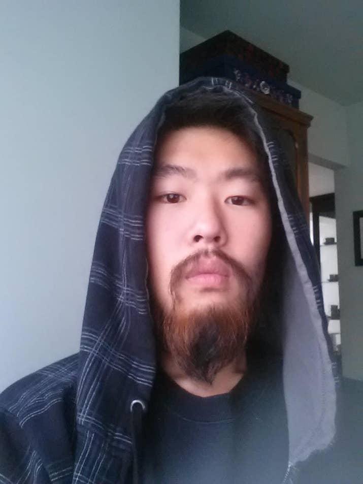 Minoxidil Beard Journey 6 Month Results