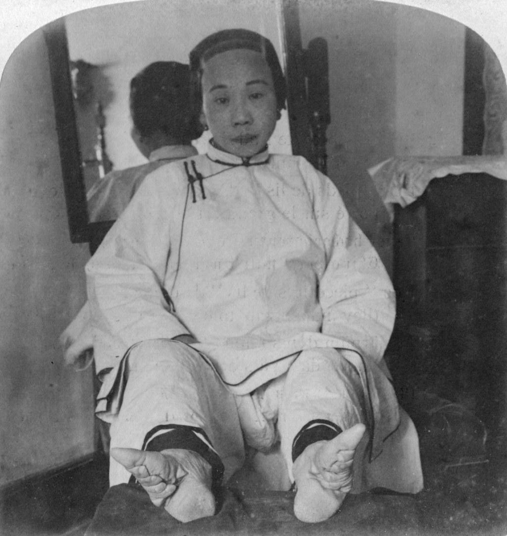 Você provavelmente não sabe a razão pela qual as mulheres chinesas deformavam os pés