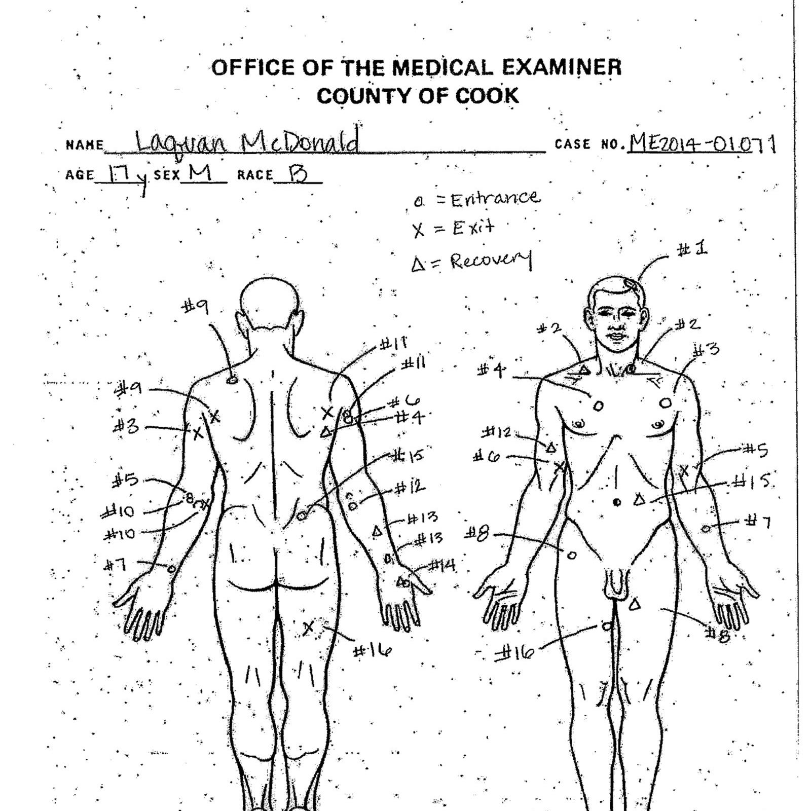 An autopsy diagram by the Cook County Medical Examiner's office shows the location of wounds McDonald's body.
