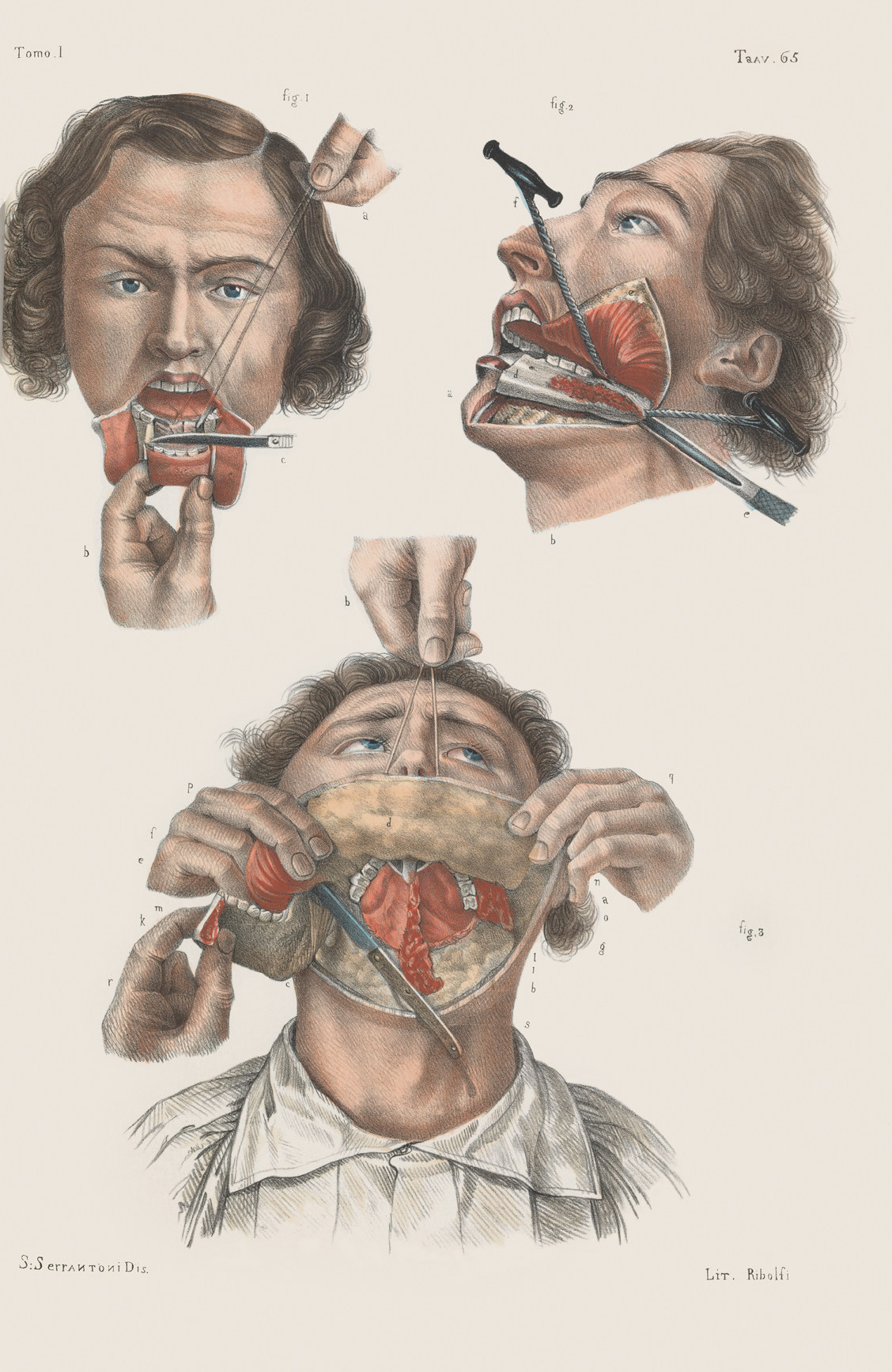 Morbidly Beautiful Pictures Reveal The Horror Of Surgery In The Victorian Era