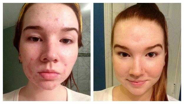 "BuzzFeed - Buzz Tagged ""skin care"""