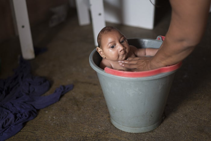 A Brazilian baby with microcephaly.