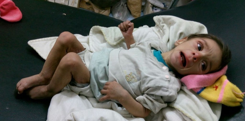 A malnourished child photographed by doctors in Madaya. An estimated 393,700 people in Syria are besieged.