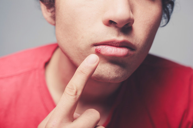 Herpes infection doesn't go away, but the outbreaks tend to become less frequent over time 2