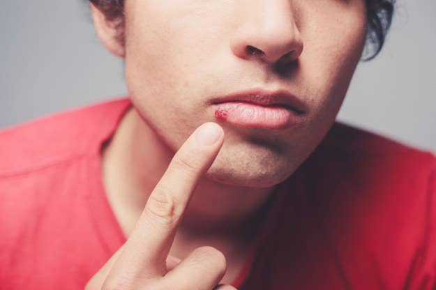 19 Surprising Things You Probably Didn't Know About Herpes