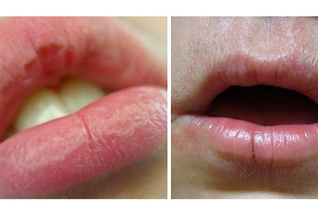 here's how to actually heal your dry, chapped lips, Skeleton