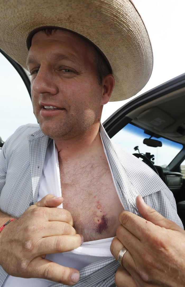 Ammon Bundy shows taser marks on his chest on April 11, 2014, after a confrontation with federal law enforcement officials.