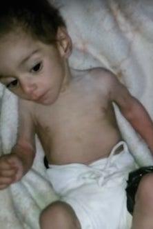 Hala Alhadad, a seven-month-old girl