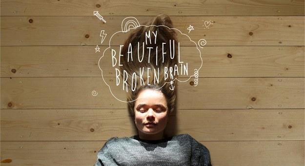 My Beautiful Broken Brain.