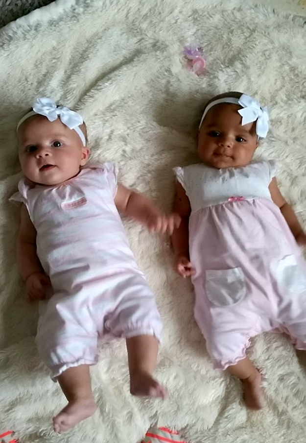 This Mom Gave Birth To Mixed Race Twins With Completely