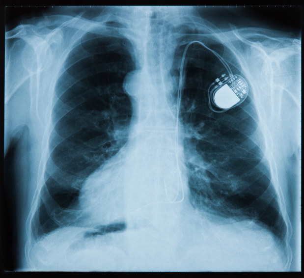 A smaller, more durable pacemaker helps people live longer.