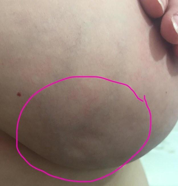 Elle avait toutefois remarqu� de petites anomalies sur son sein droit.