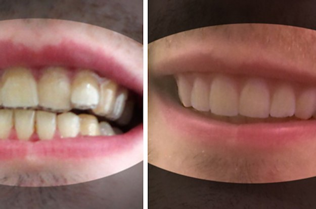 Heres How A College Student Created His Own Braces For Less Than 60