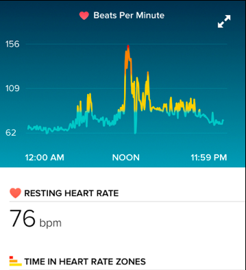 Screenshot of the onset of atrial fibrillation.