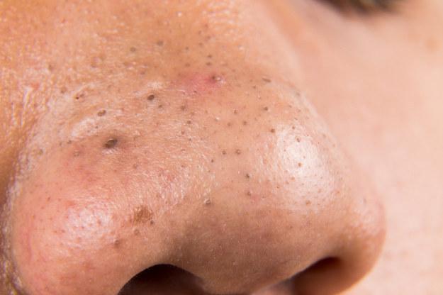 ¿Puedes resistirte a pellizcar estos puntos negros en la nariz?