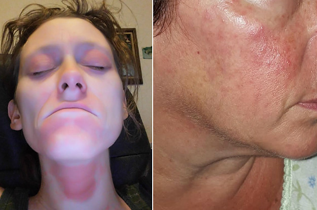 People Say These Neutrogena Products Are Leaving Their Face Burning And Irritated