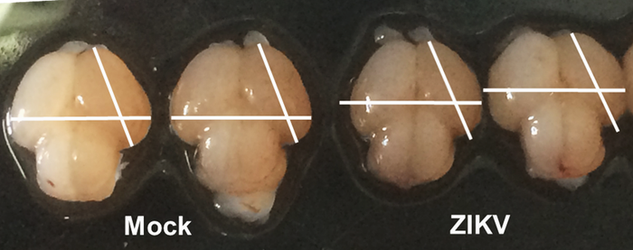 Fetal mouse brains infected with Zika are much smaller (right) than normal (left).