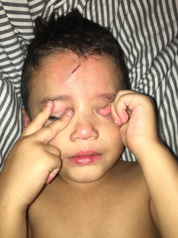 Ayden sofreu um pequeno acidente na noite da terça-feira passada. Ele pulou em uma pilha de roupas para lavar e acabou cortando a testa na lateral da cama.
