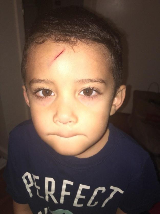 Ayden ficou com tanta vergonha do machucado que não quis sair de casa no dia seguinte, contou sua mãe.
