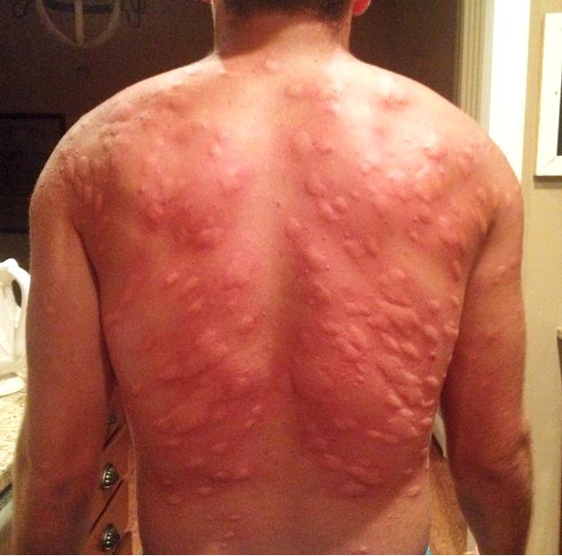 ¿Qué dices de esta constelación de picaduras de mosquitos?