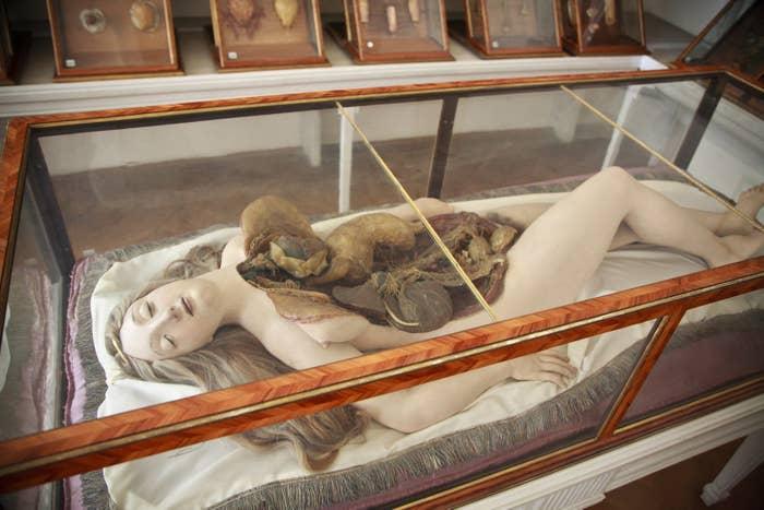 Cette Vénus anatomique, conçue par l'atelier de La Specola entre 1784 et 1788, est exposée dans son écrin en bois de rose et verre vénitien d'origine au Josephinum de Vienne, en Autriche.