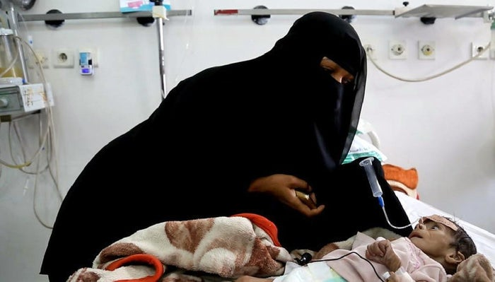 Udai Faisal, suffering acute malnutrition, is fed by his mother, Intissar Hezzam, at al-Sabeen Hospital in Sanaa, 22 March.