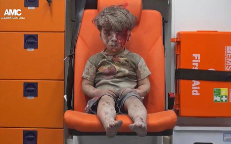 This is Omran Daqneesh, a five-year-old Syrian child who was injured in an airstrike in Aleppo on Wednesday. On Thursday, images of him sitting on a chair covered in dust and blood were shared widely around the world.