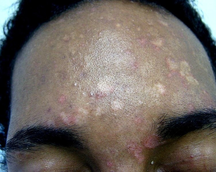 This Skin Fungus Is Super Common And You'll Probably Get It At Some Point