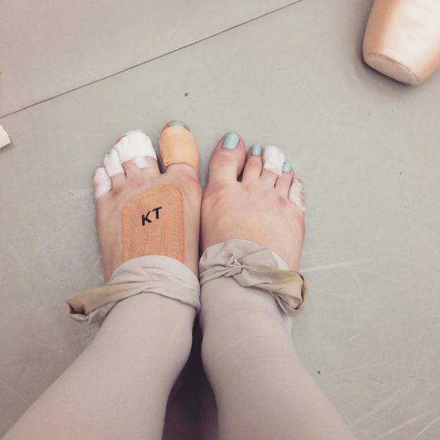 No importa cuánto Micropore usen, los pies de toda bailarina están destinados a sufrir.