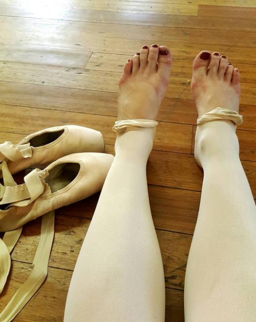 No, sus pies no fueron arrollados por un camión, solo tuvo una clase de ballet.