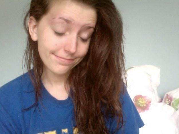 Adolescent avec chatte rasée